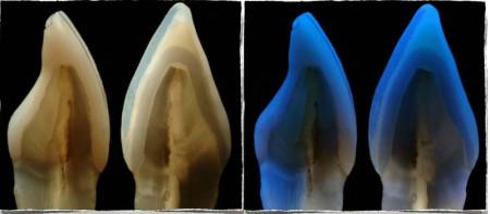 Corte de un diente con carilla vs diente sin carillas y comportamiento frente a la luz
